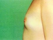 b1-jpg